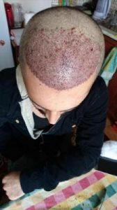 arenamed-hair-transplant-result (7)