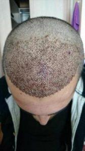 arenamed-hair-transplant-result (9)
