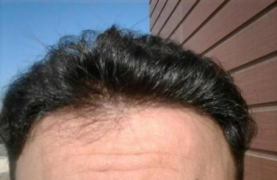 doctor-kul-hair-transplant (5)