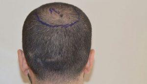 dr-cinik-hair-transplant-results (11)