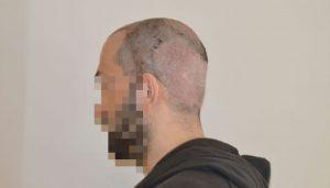 dr-cinik-hair-transplant-results (13)