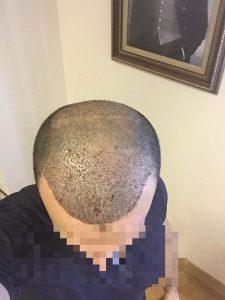 dr-cinik-hair-transplant-results (16)