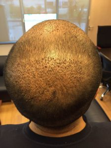 dr-cinik-hair-transplant-results (20)