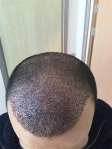 dr-cinik-hair-transplant-results (21)