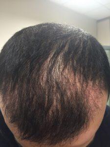 dr-cinik-hair-transplant-results (4)