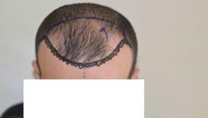 dr-cinik-hair-transplant-results (6)