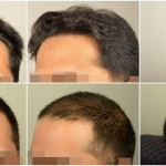 dr-erdogan-hair-transplant-result (1)