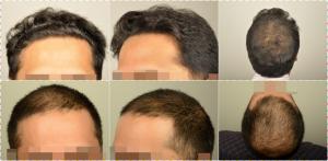 dr-erdogan-hair-transplant-result (1)
