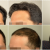 DR.ERDOGAN HAIR TRANSPLANT RESULT – 4611 GRAFTS