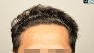 dr-erdogan-hair-transplant-result (2)
