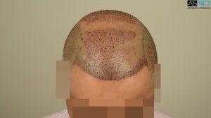 dr-erdogan-hair-transplant-result (4)