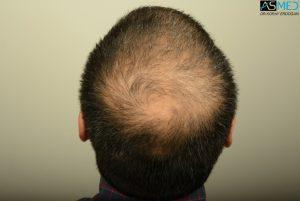 dr-erdogan-hair-transplant-result (5)