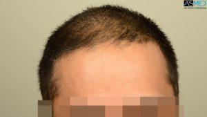 dr-erdogan-hair-transplant-result (8)