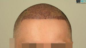 dr-erdogan-hair-transplant-result (9)