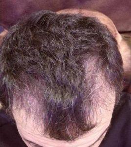 dr-kul-hair-transplant (11)