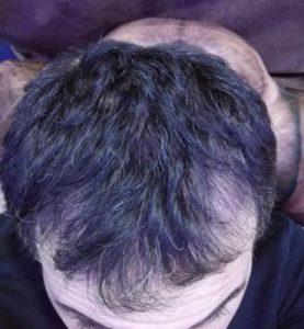 dr-kul-hair-transplant (14)