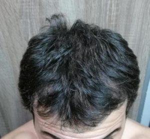 dr-kul-hair-transplant (15)