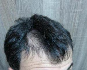 dr-kul-hair-transplant (17)