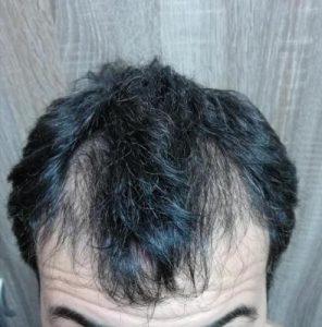 dr-kul-hair-transplant (18)