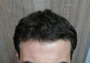 dr-kul-hair-transplant (19)