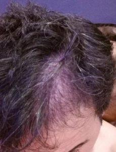 dr-kul-hair-transplant (20)