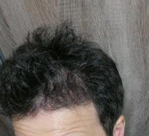dr-kul-hair-transplant (21)