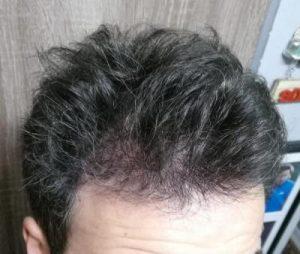 dr-kul-hair-transplant (22)