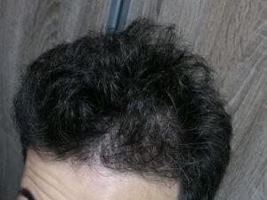 dr-kul-hair-transplant (23)