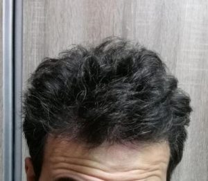 dr-kul-hair-transplant (25)