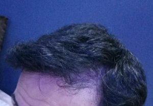 dr-kul-hair-transplant (29)