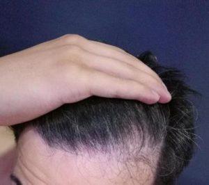 dr-kul-hair-transplant (32)