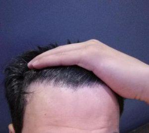 dr-kul-hair-transplant (33)
