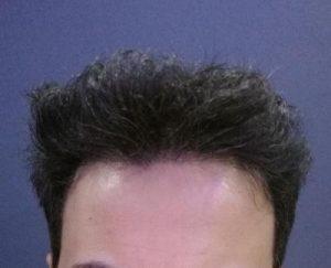 dr-kul-hair-transplant (34)