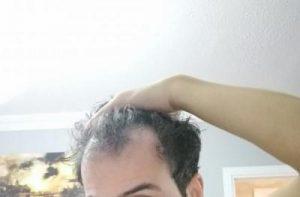 dr-kul-hair-transplant (36)