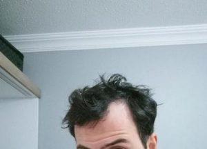 dr-kul-hair-transplant (38)