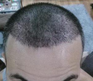dr-kul-hair-transplant (6)
