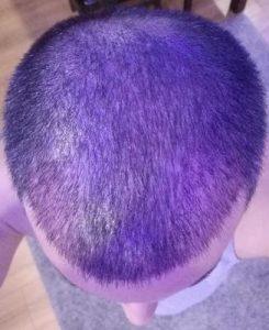 dr-kul-hair-transplant (7)