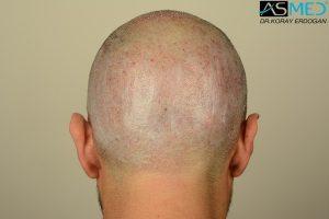 fue-hair-transplant (10)
