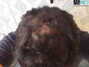 fue-hair-transplant (12)
