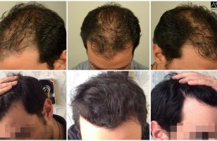 fue-hair-transplant (13)