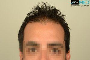 fue-hair-transplant (14)