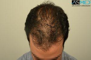 fue-hair-transplant (15)