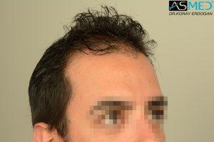fue-hair-transplant (16)