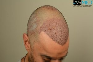 fue-hair-transplant (4)