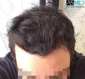fue-hair-transplant (5)