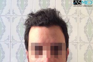 fue-hair-transplant (6)