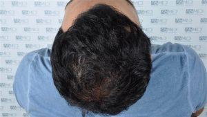 fue-hair-transplant (8)