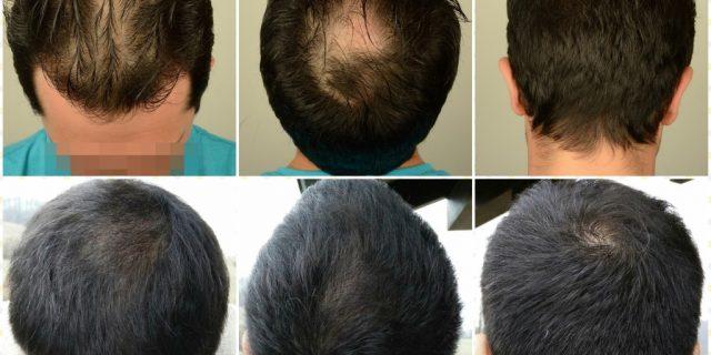 hair-transplant-asmed-istanbul (2)
