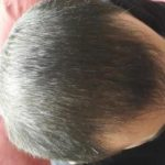 3250-grafts-hair-transplant-results (15)