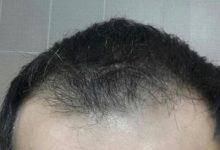 3250-grafts-hair-transplant-results (2)